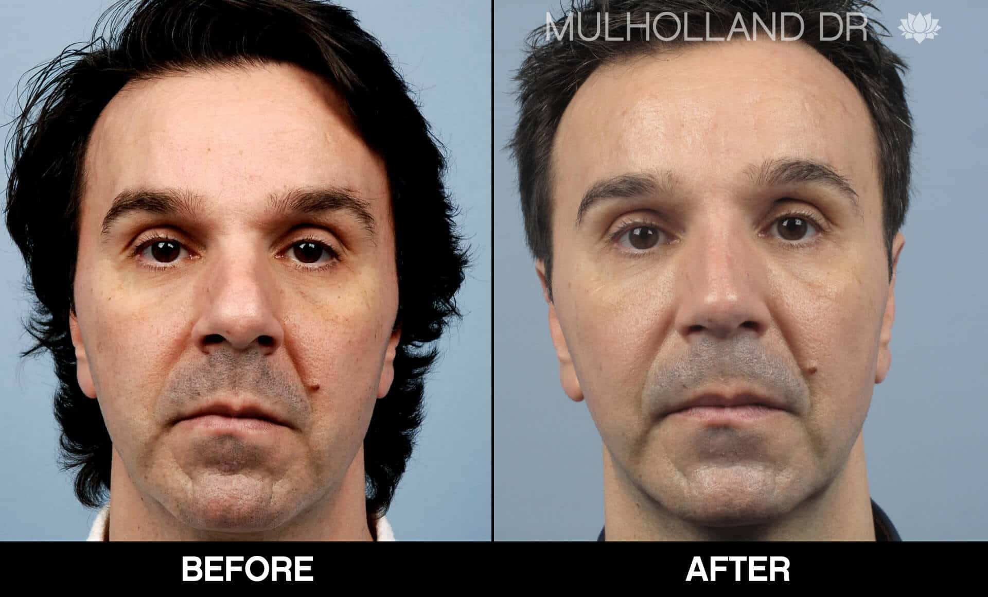 Male Rhinoplasty - Before and After Gallery - Patient Photo 3