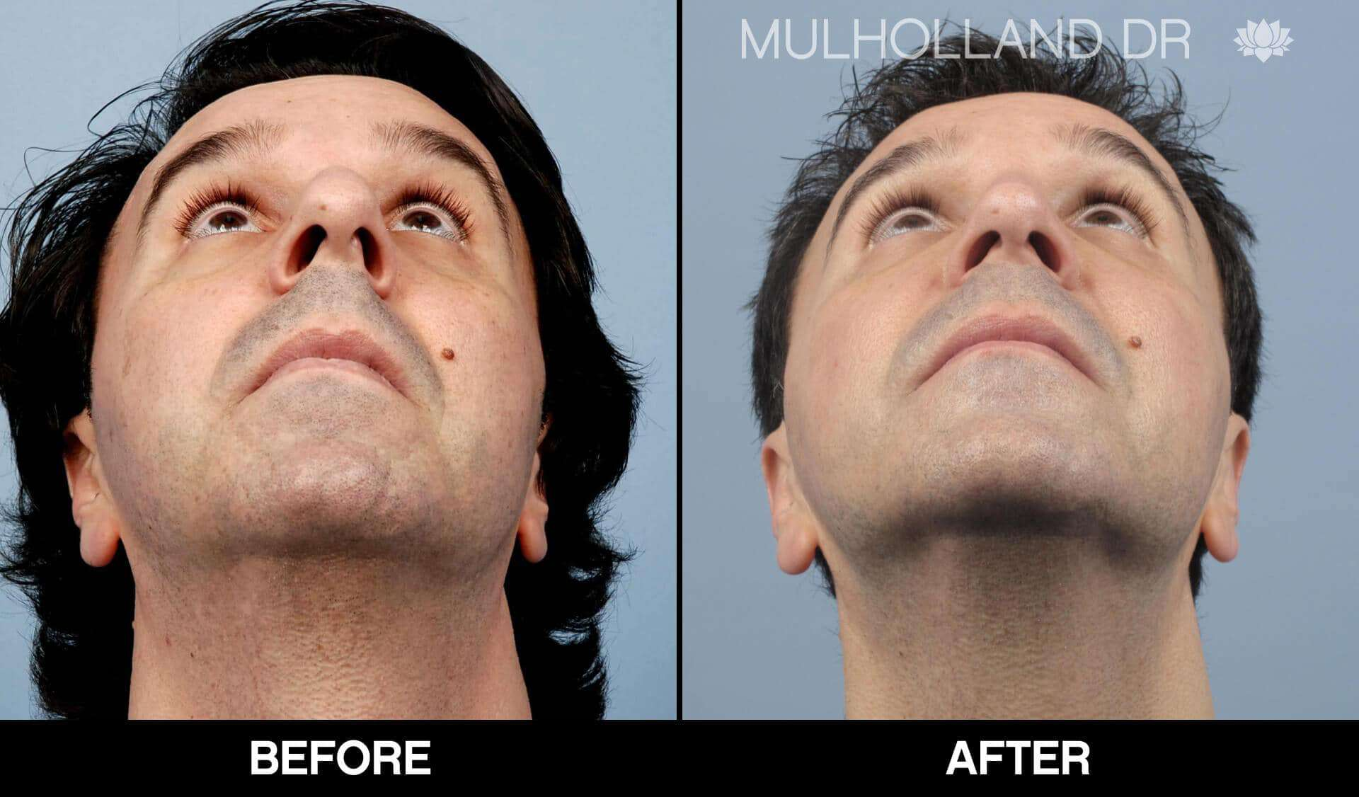Male Rhinoplasty - Before and After Gallery - Patient Photo 4