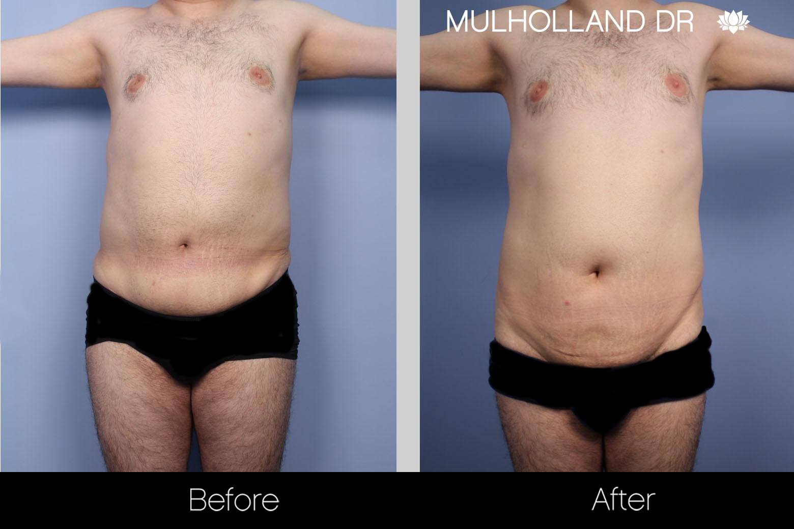Male Tummy Tuck - Before and After Gallery - Patient Photo 1