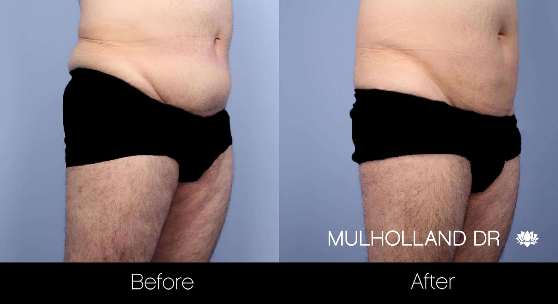 Male Tummy Tuck - Before and After Gallery - Patient Photo 10