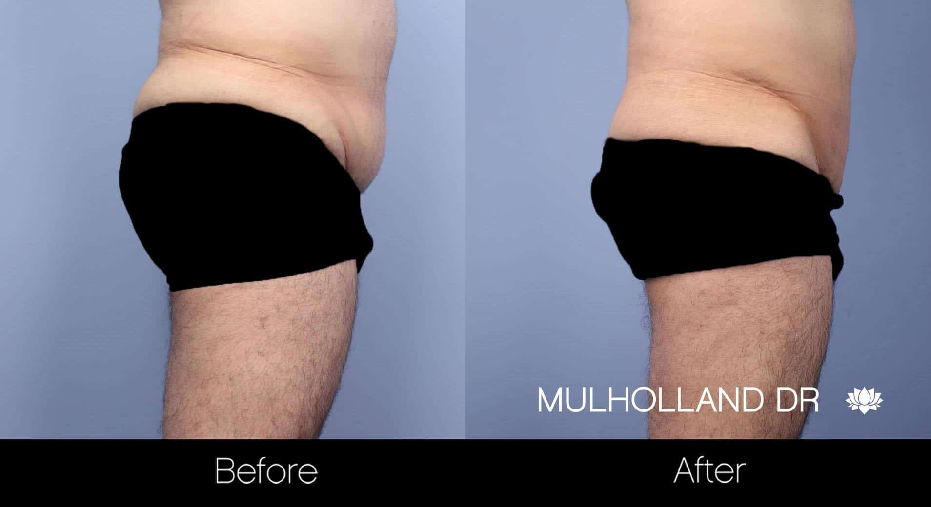 Male Tummy Tuck - Before and After Gallery - Patient Photo 11