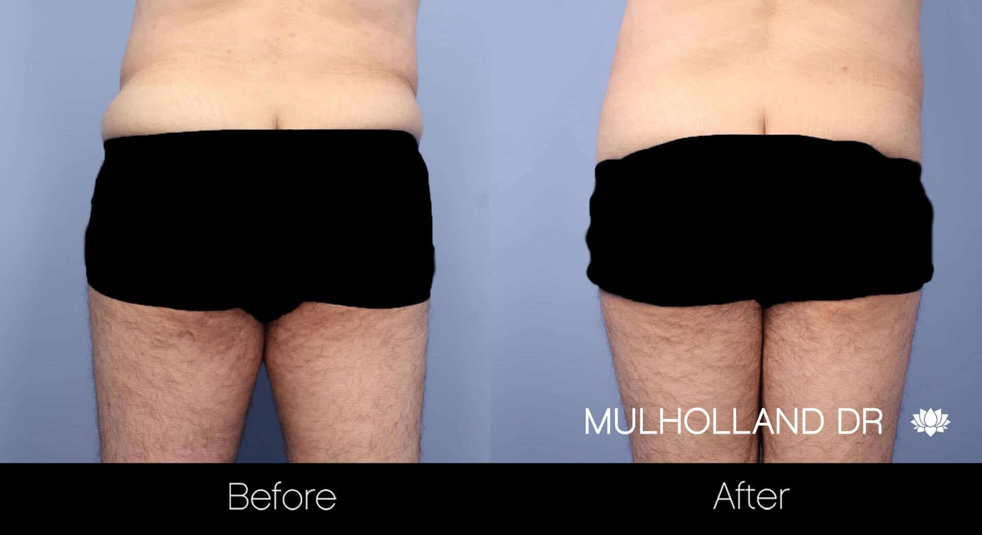 Male Tummy Tuck - Before and After Gallery - Patient Photo 12