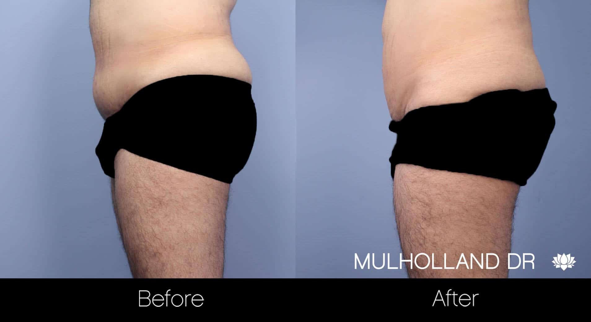 Male Tummy Tuck - Before and After Gallery - Patient Photo 13