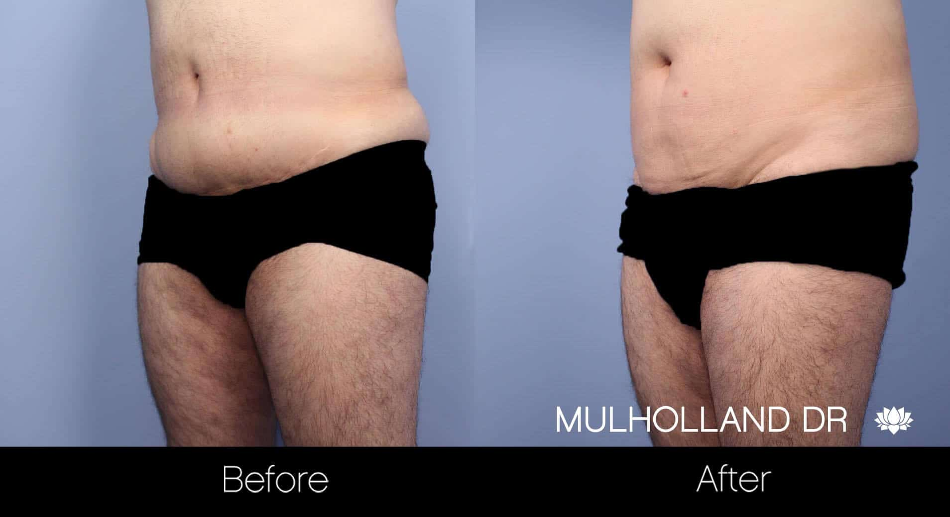 Male Tummy Tuck - Before and After Gallery - Patient Photo 14