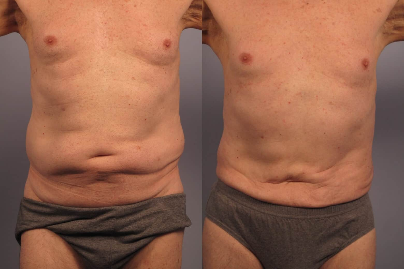 Male Tummy Tuck - Before and After Gallery - Patient Photo 15