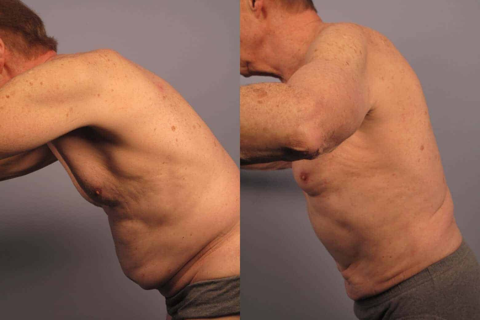 Male Tummy Tuck - Before and After Gallery - Patient Photo 16