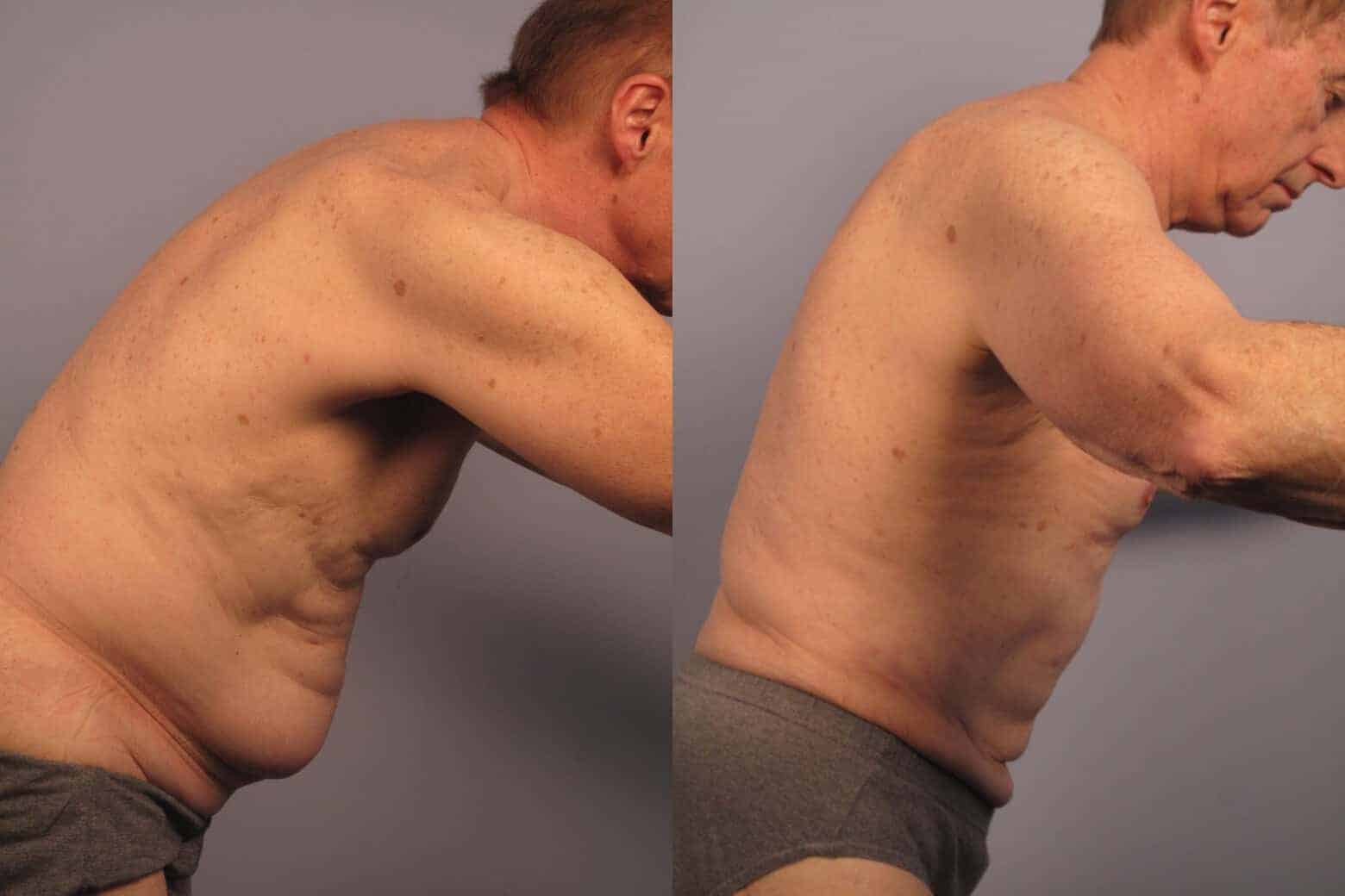 Male Tummy Tuck - Before and After Gallery - Patient Photo 17