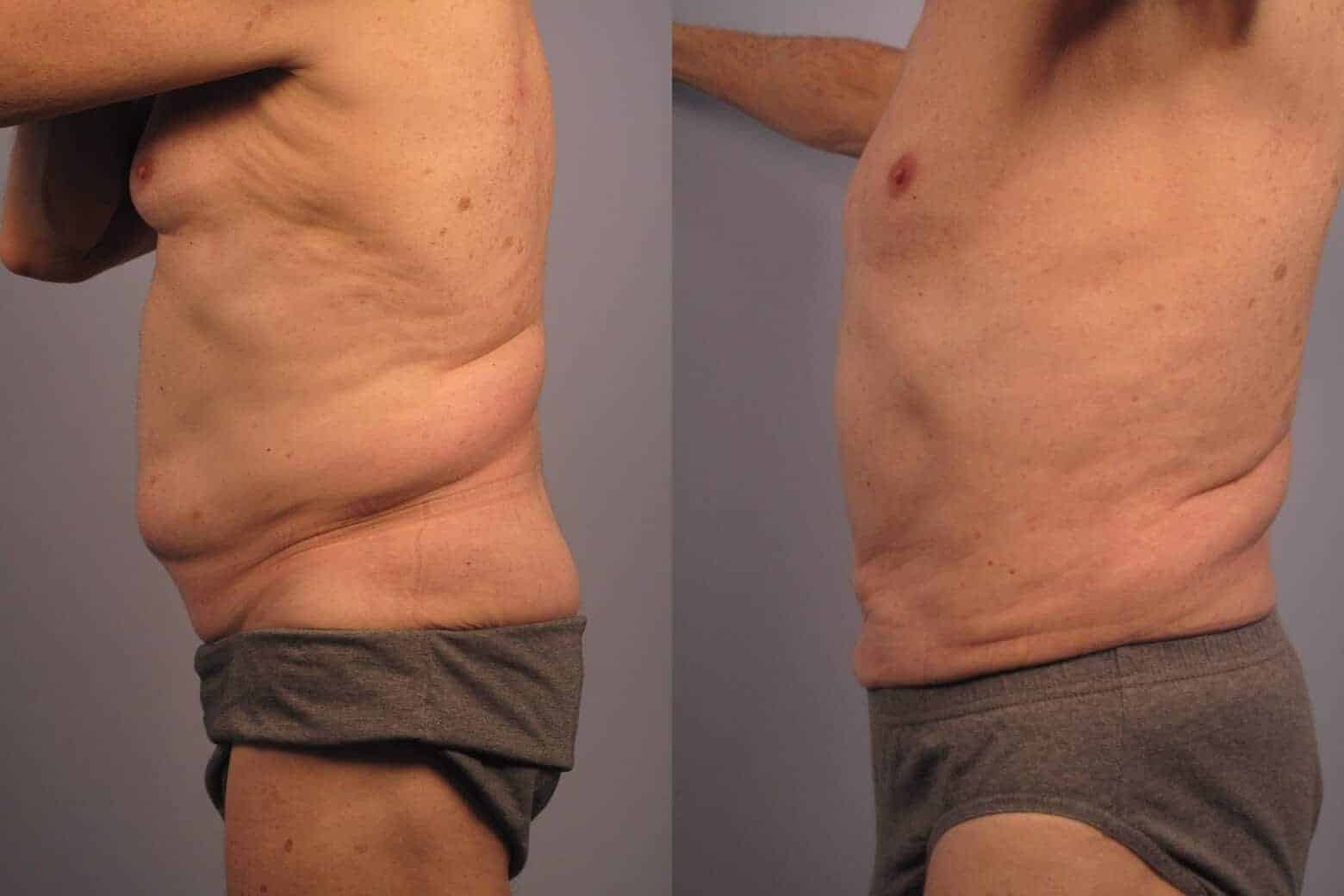 Male Tummy Tuck - Before and After Gallery - Patient Photo 18