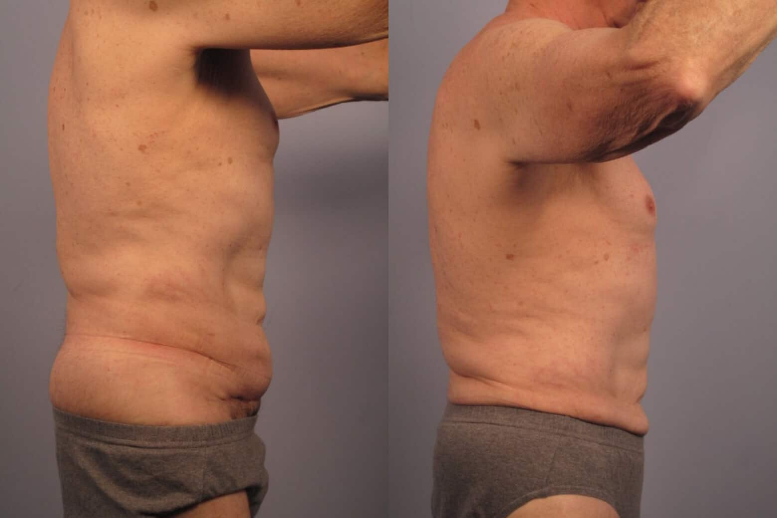 Male Tummy Tuck - Before and After Gallery - Patient Photo 19