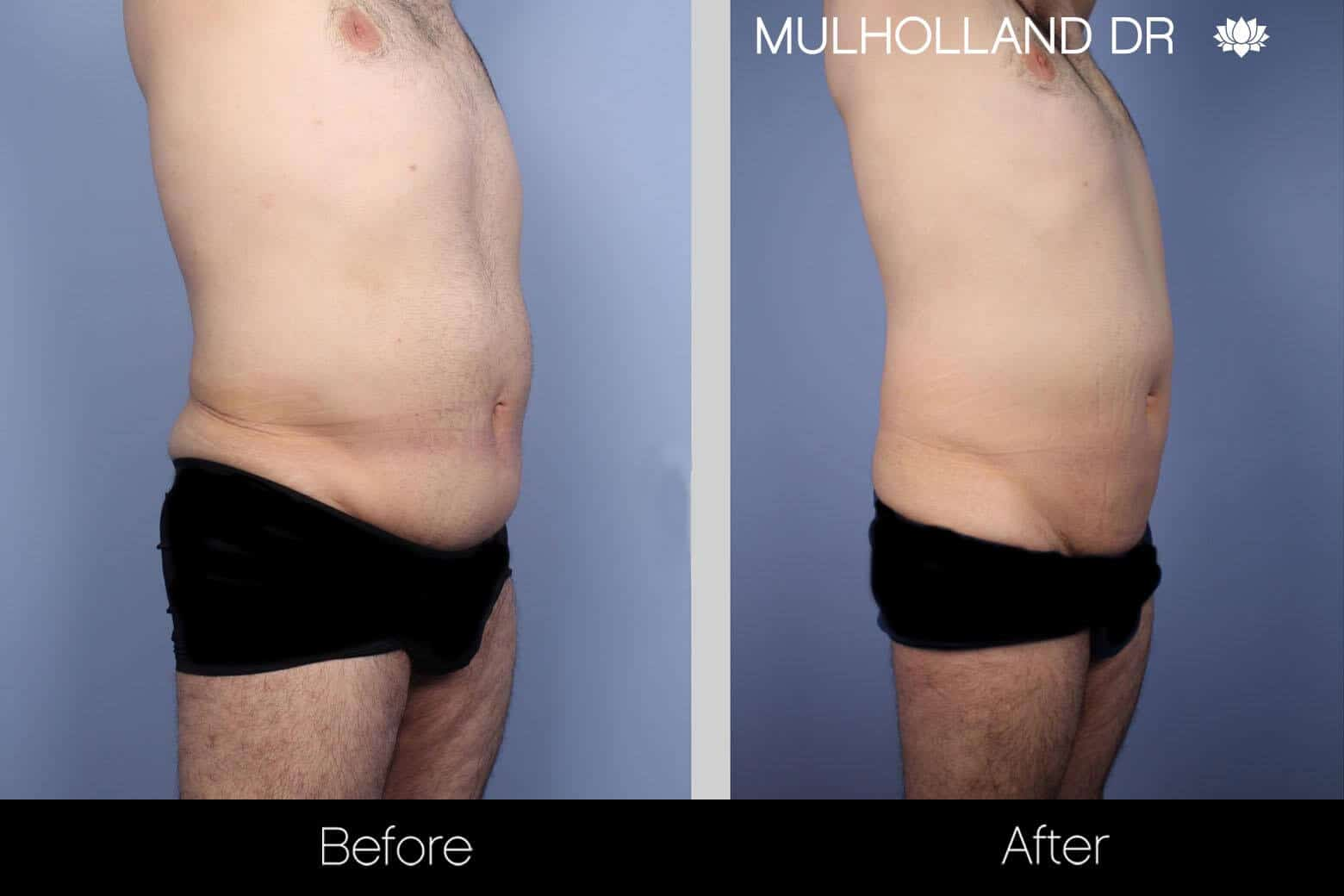 Male Tummy Tuck - Before and After Gallery - Patient Photo 2