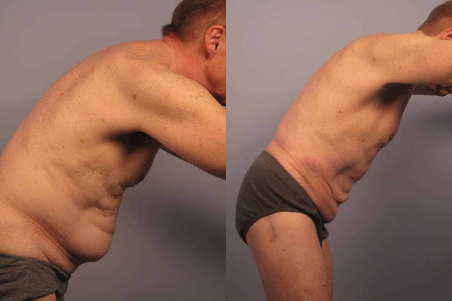 Male Tummy Tuck - Before and After Gallery - Patient Photo 20