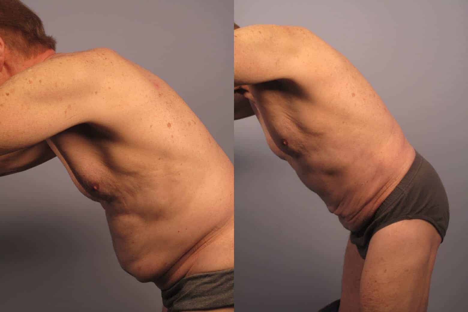 Male Tummy Tuck - Before and After Gallery - Patient Photo 21