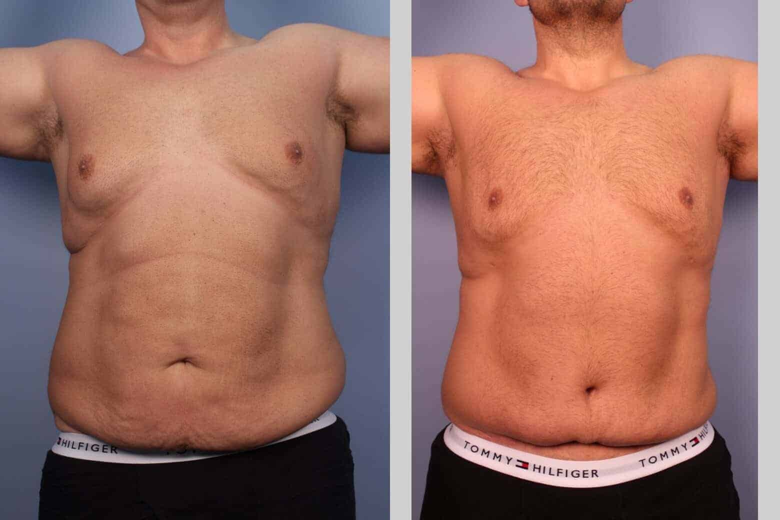 Male Tummy Tuck - Before and After Gallery - Patient Photo 22