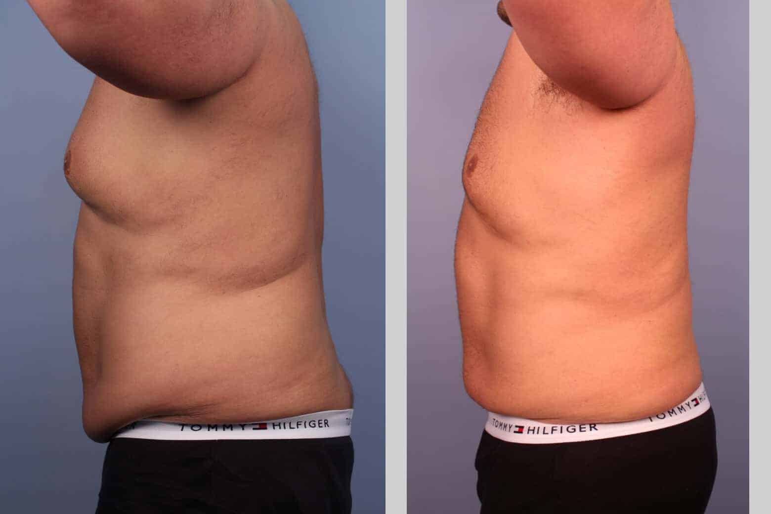 Male Tummy Tuck - Before and After Gallery - Patient Photo 23
