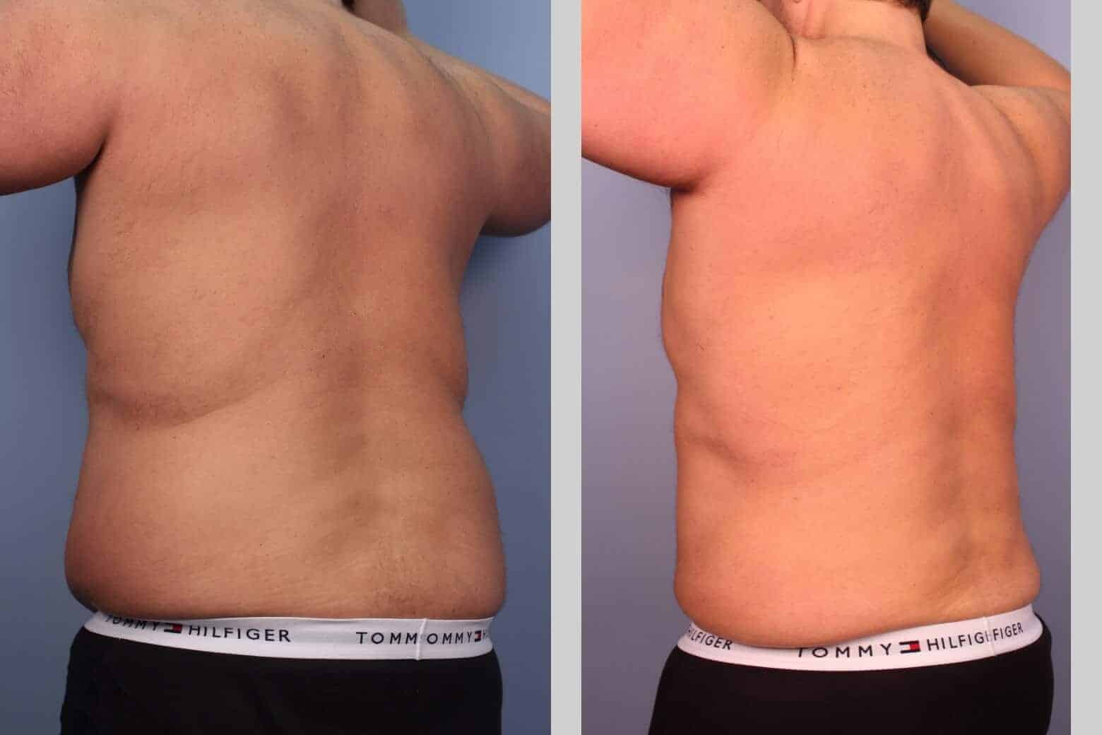Male Tummy Tuck - Before and After Gallery - Patient Photo 24