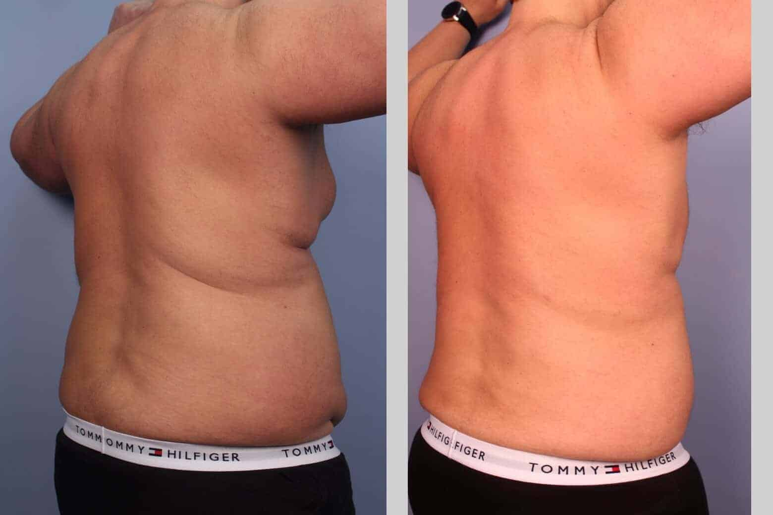 Male Tummy Tuck - Before and After Gallery - Patient Photo 25