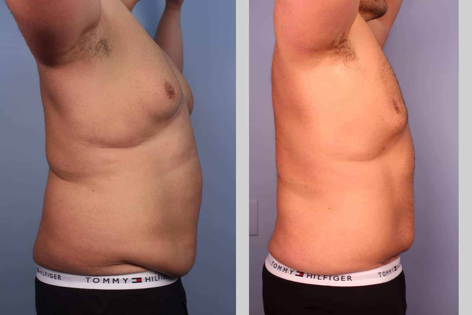 Male Tummy Tuck - Before and After Gallery - Patient Photo 26