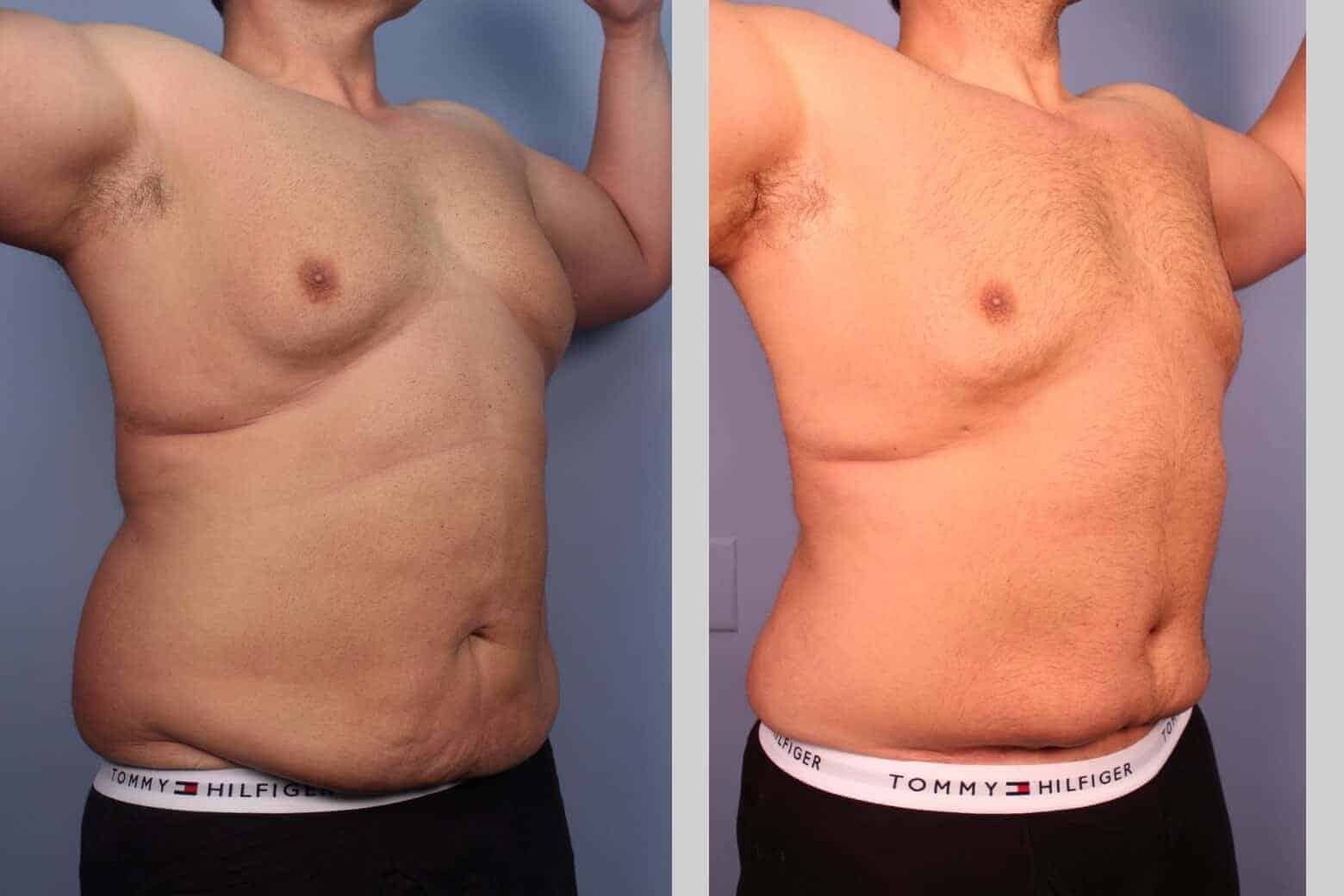 Male Tummy Tuck - Before and After Gallery - Patient Photo 27