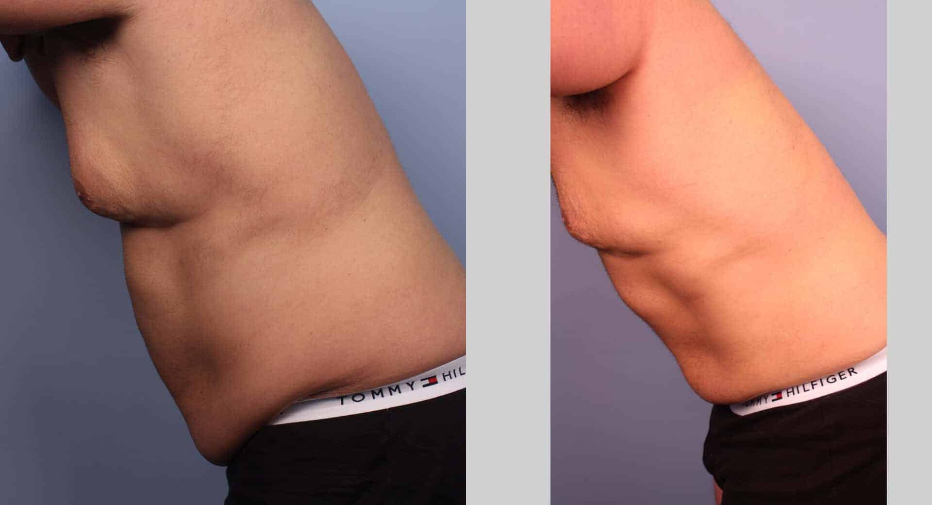 Male Tummy Tuck - Before and After Gallery - Patient Photo 29