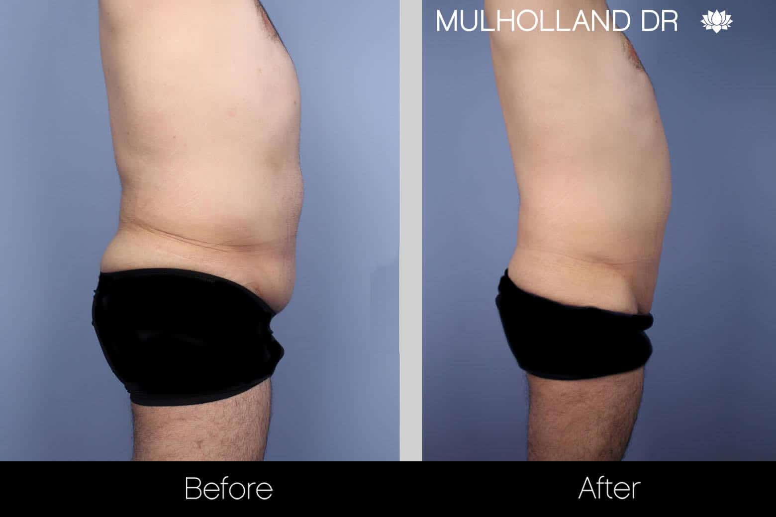 Male Tummy Tuck - Before and After Gallery - Patient Photo 3