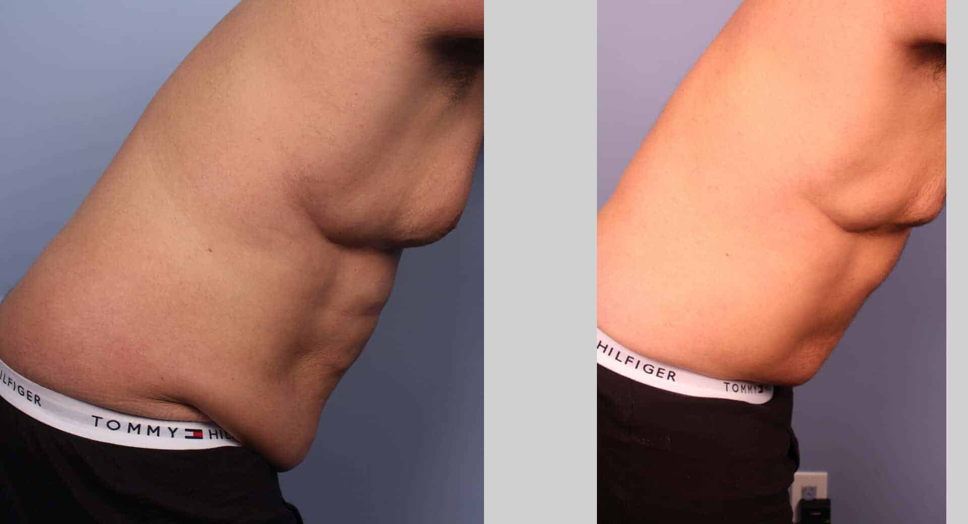 Male Tummy Tuck - Before and After Gallery - Patient Photo 30