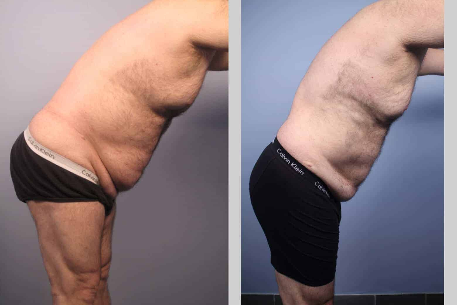 Male Tummy Tuck - Before and After Gallery - Patient Photo 32