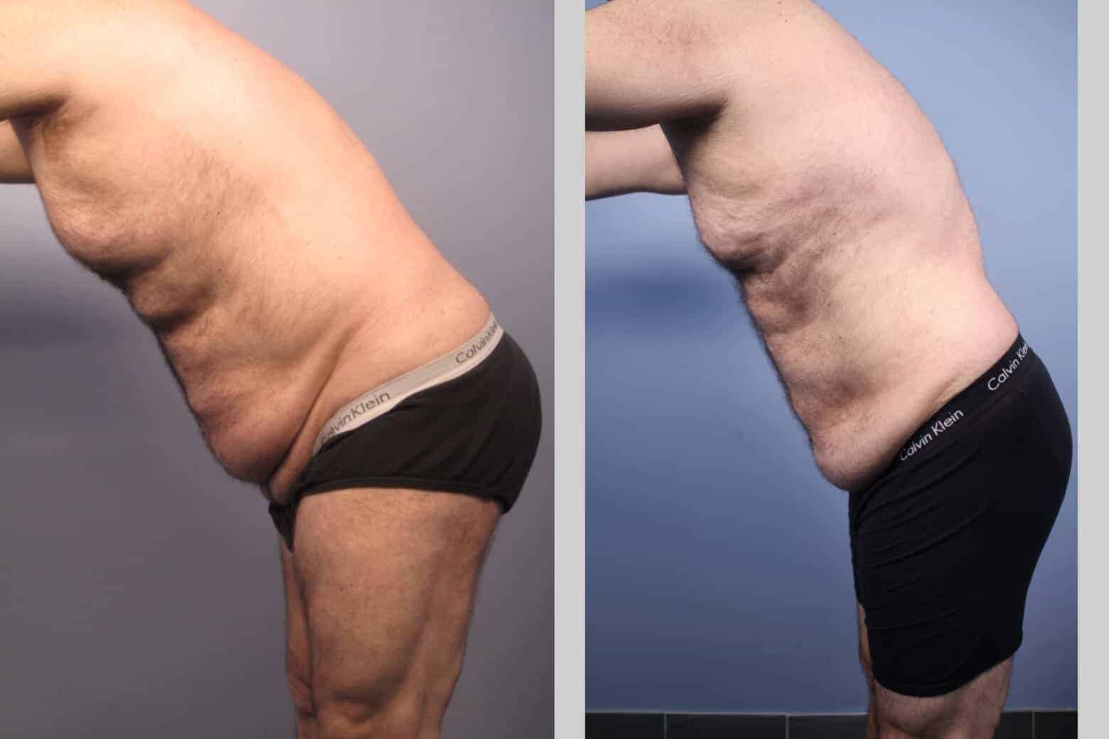 Male Tummy Tuck - Before and After Gallery - Patient Photo 33