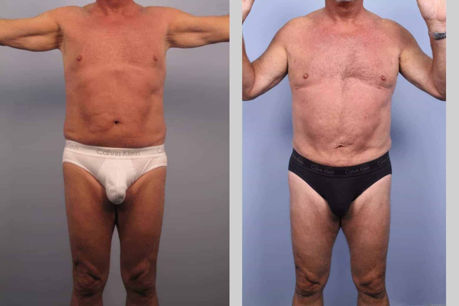 Male Tummy Tuck - Before and After Gallery - Patient Photo 34
