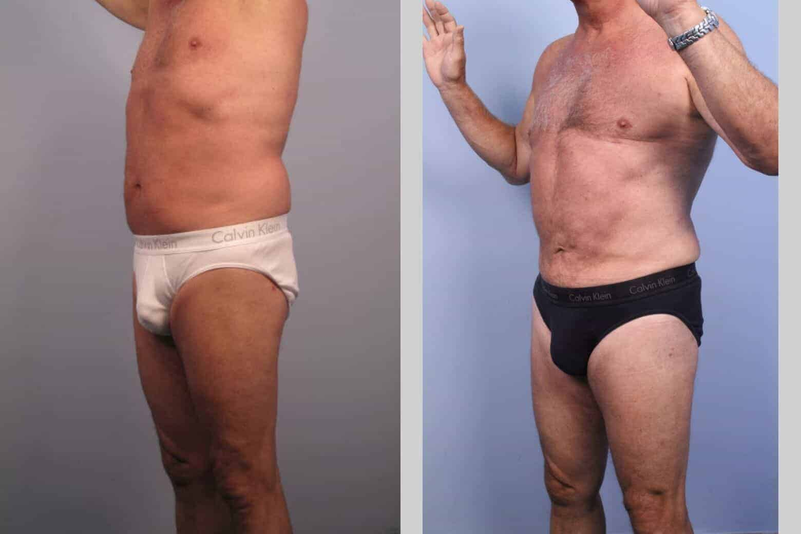 Male Tummy Tuck - Before and After Gallery - Patient Photo 35