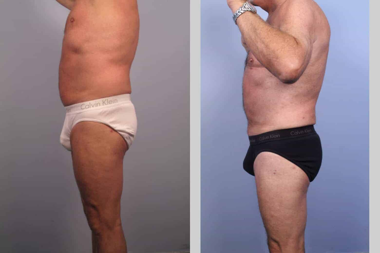 Male Tummy Tuck - Before and After Gallery - Patient Photo 36