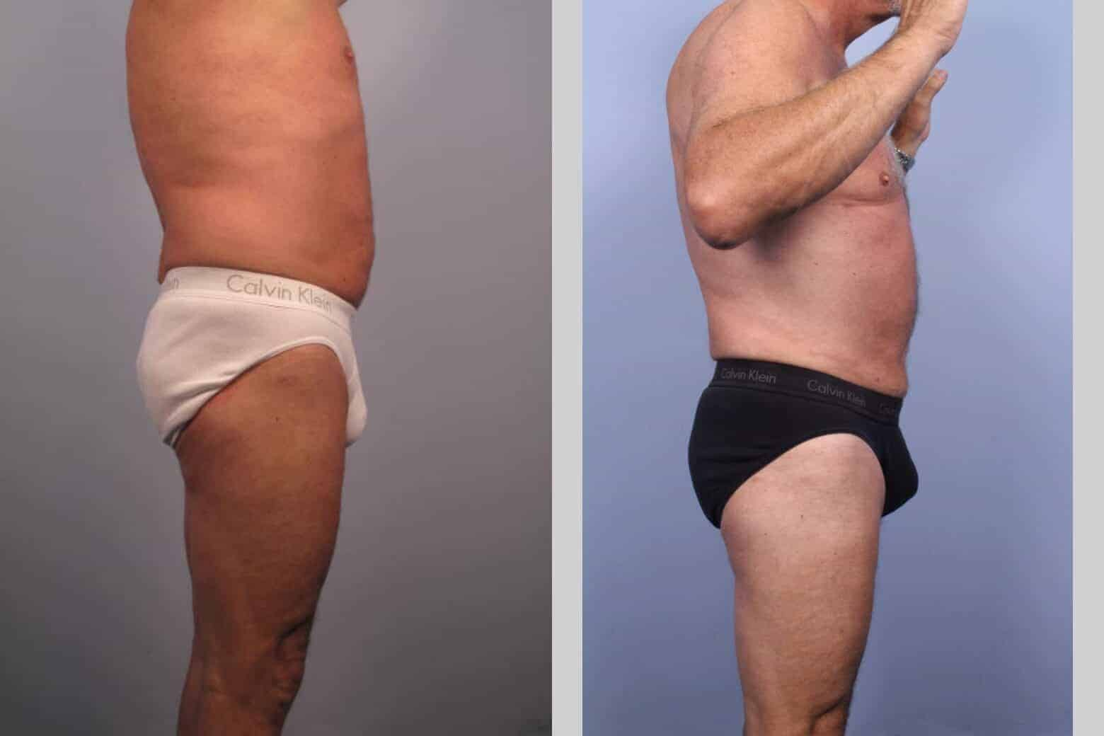 Male Tummy Tuck - Before and After Gallery - Patient Photo 37