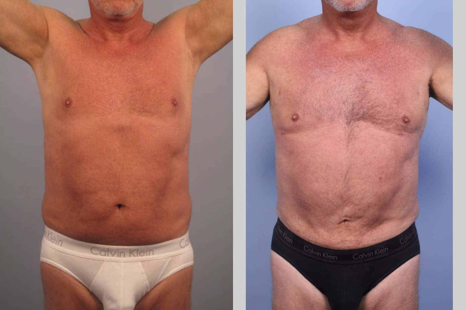 Male Tummy Tuck - Before and After Gallery - Patient Photo 38