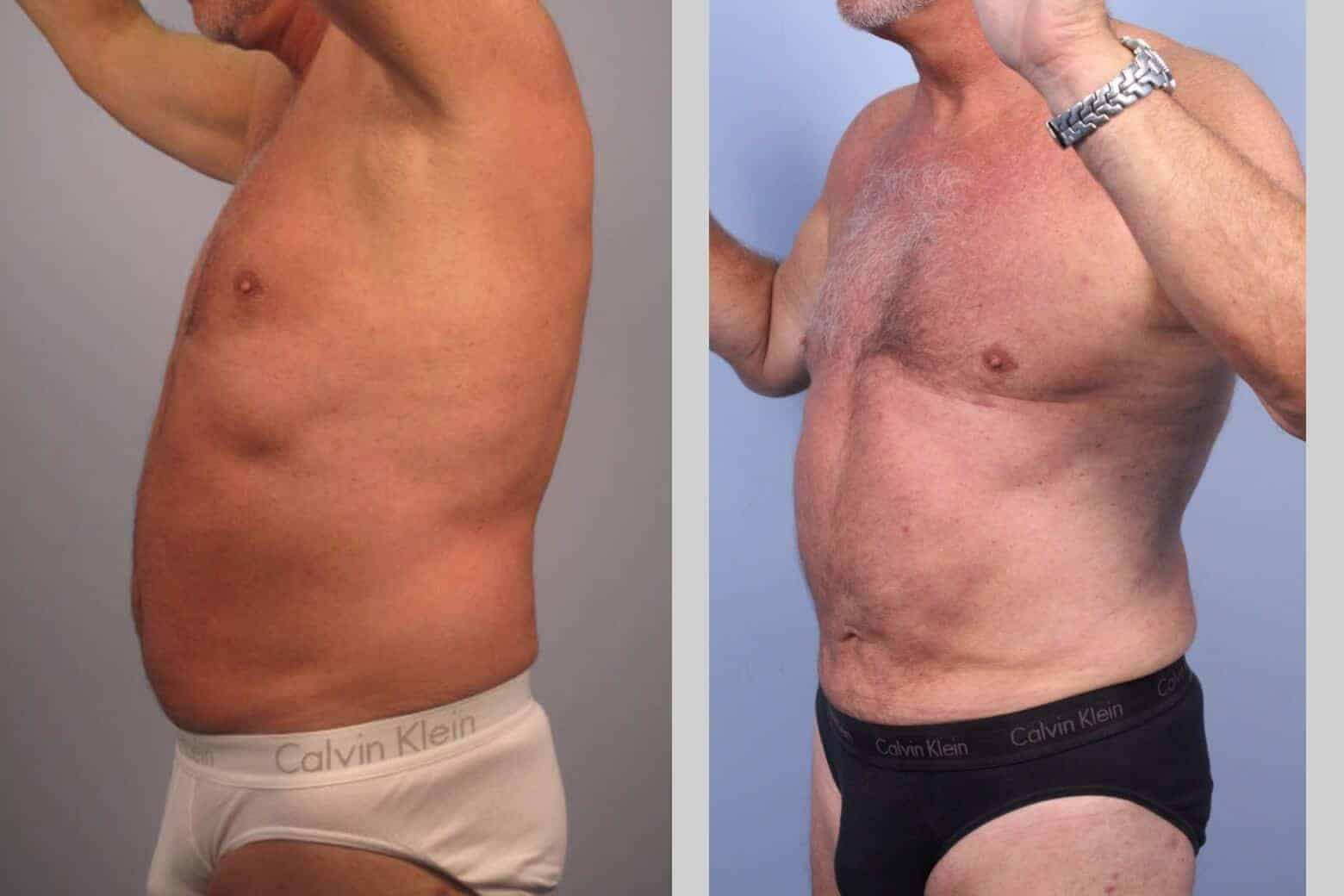 Male Tummy Tuck - Before and After Gallery - Patient Photo 39