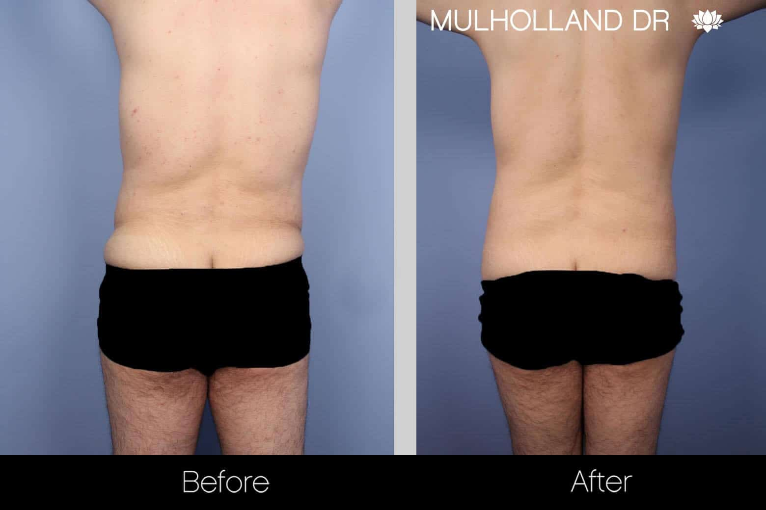 Male Tummy Tuck - Before and After Gallery - Patient Photo 4