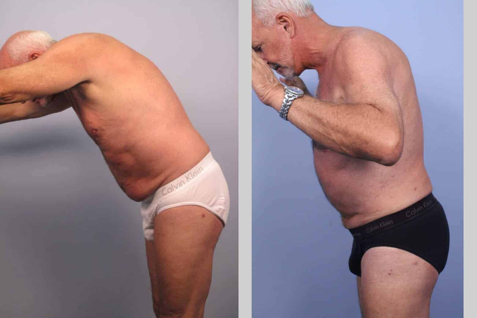 Male Tummy Tuck - Before and After Gallery - Patient Photo 41