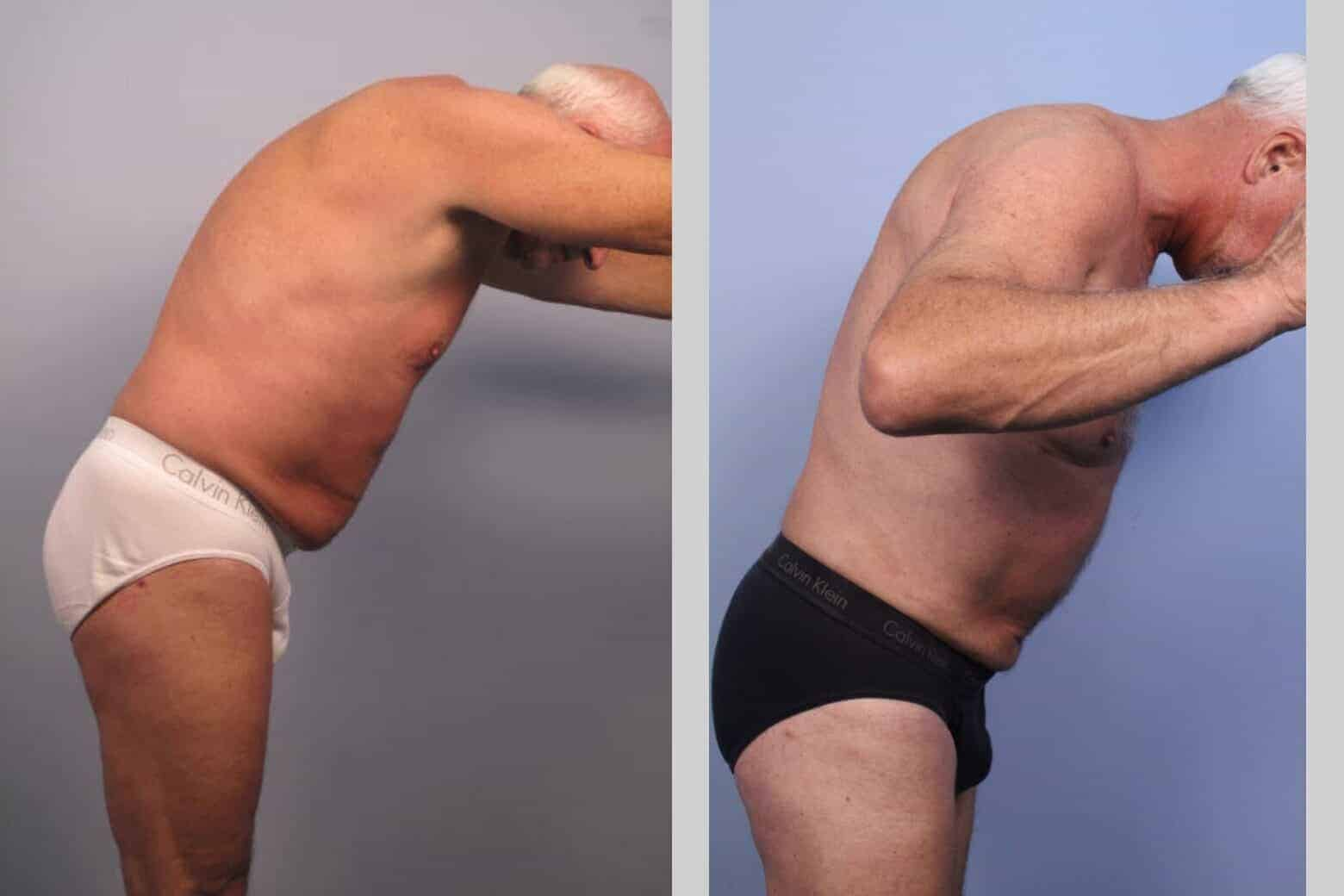 Male Tummy Tuck - Before and After Gallery - Patient Photo 42