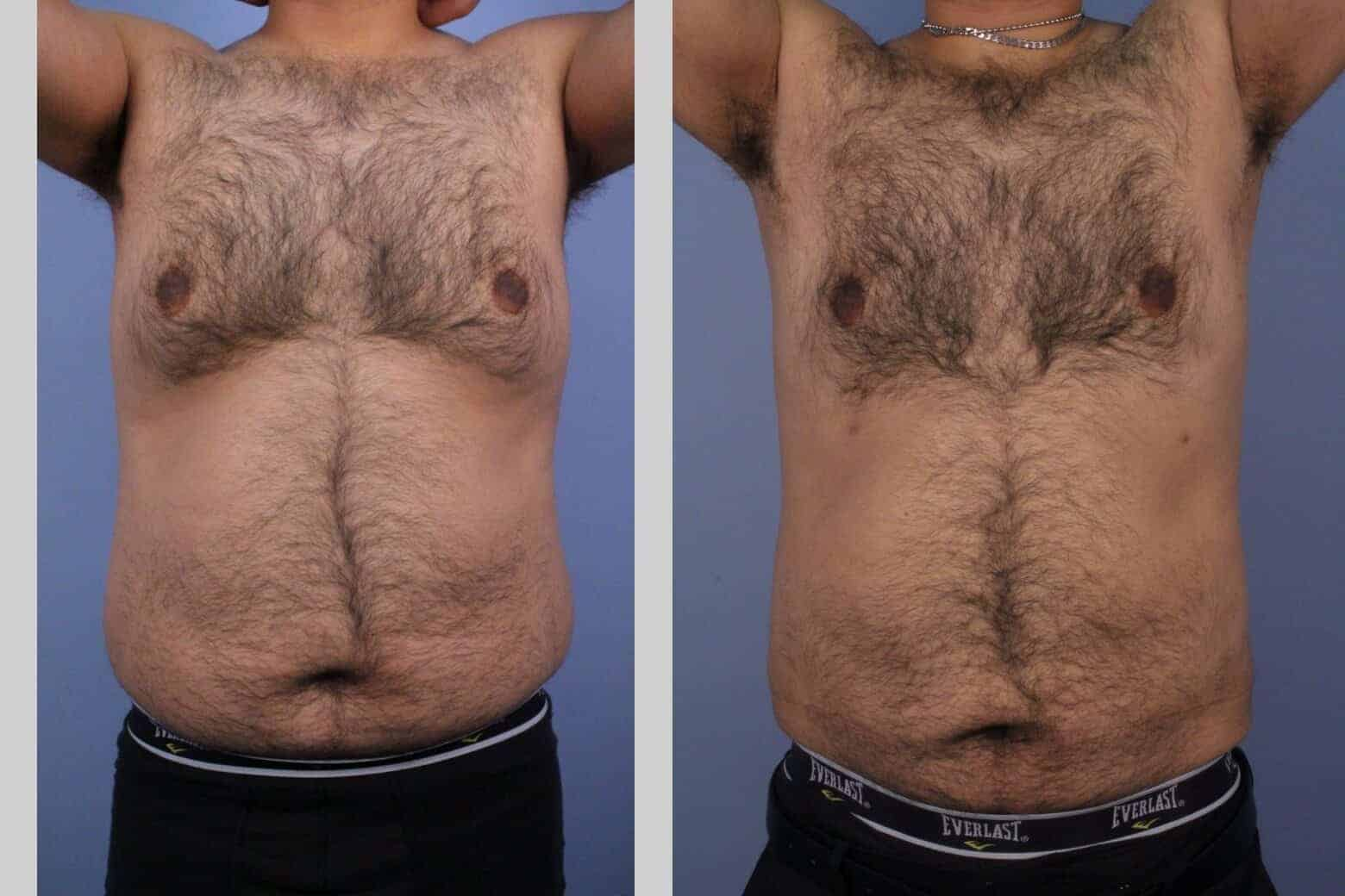 Male Tummy Tuck - Before and After Gallery - Patient Photo 43