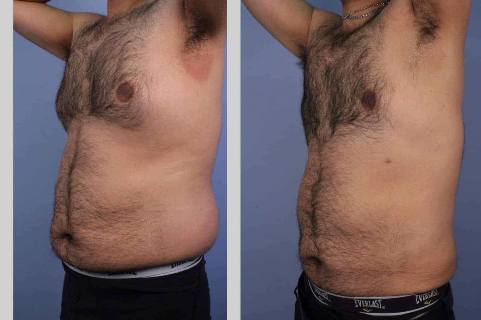 Male Tummy Tuck - Before and After Gallery - Patient Photo 44