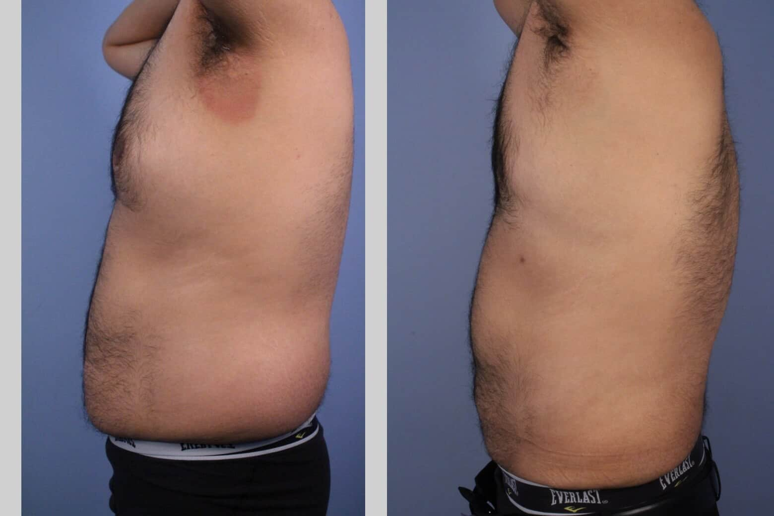 Male Tummy Tuck - Before and After Gallery - Patient Photo 45