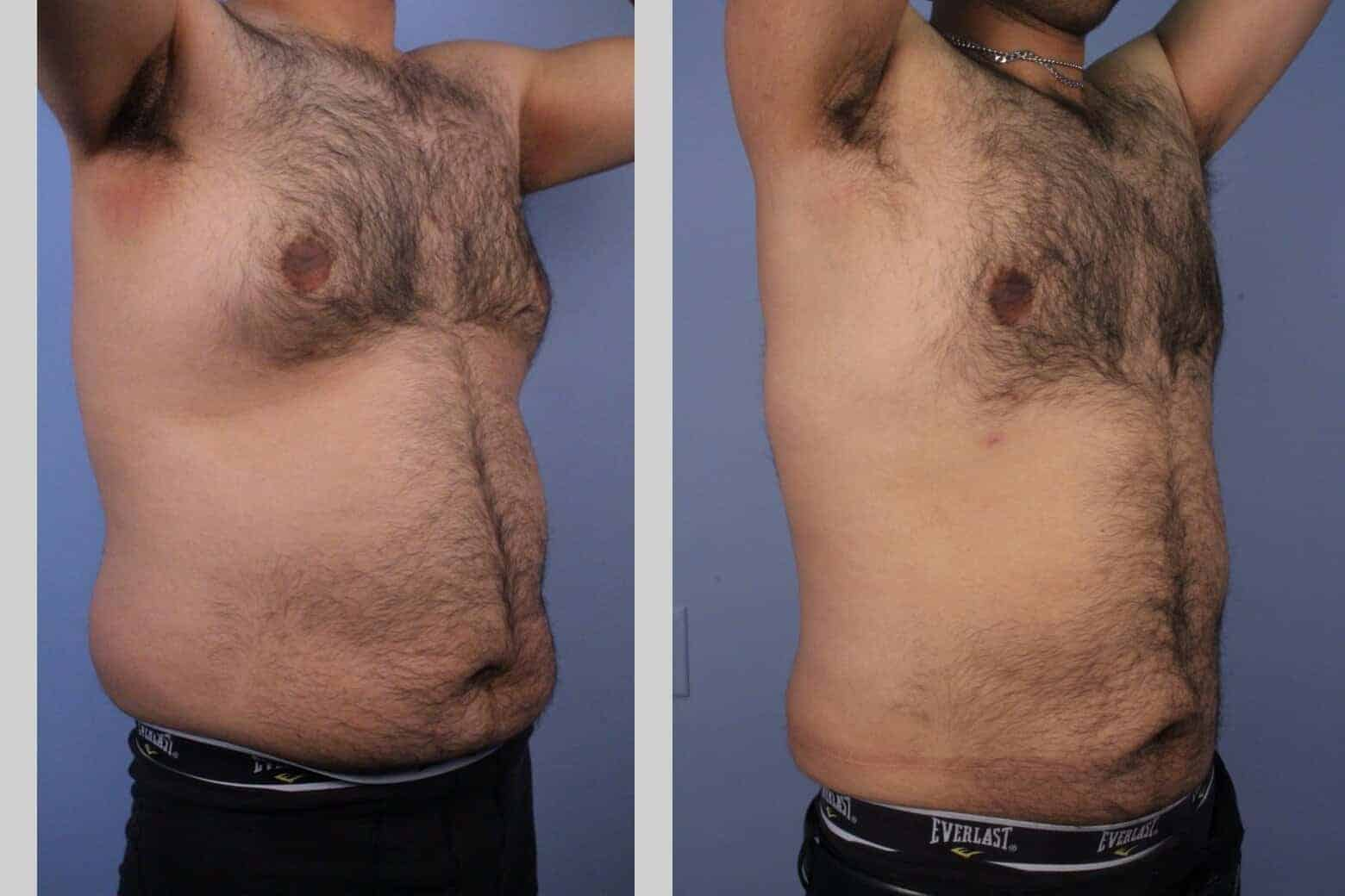 Male Tummy Tuck - Before and After Gallery - Patient Photo 46