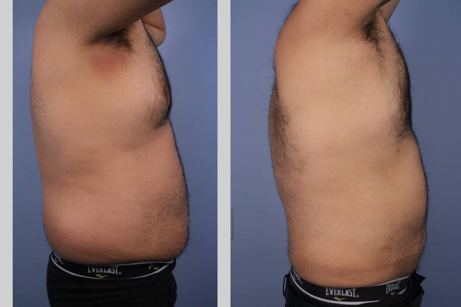 Male Tummy Tuck - Before and After Gallery - Patient Photo 47a