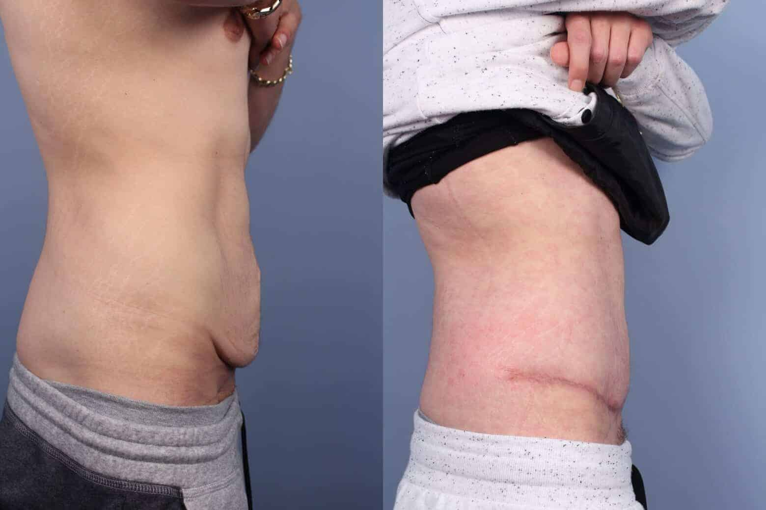 Male Tummy Tuck - Before and After Gallery - Patient Photo 48