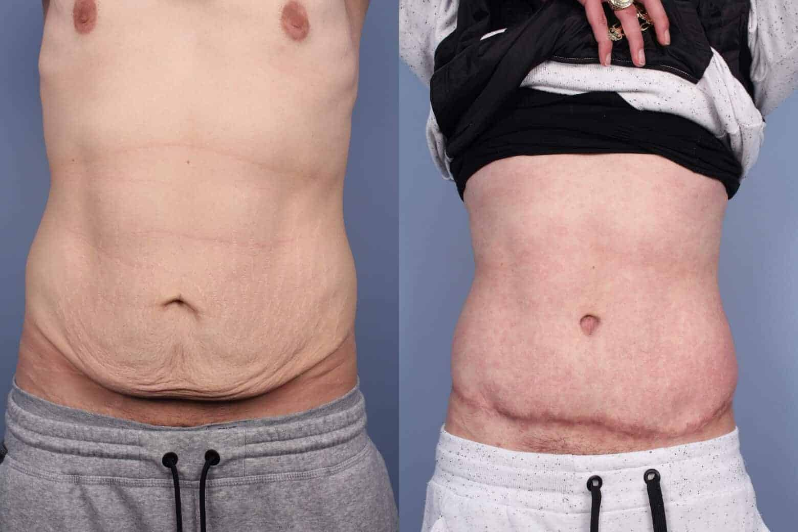 Male Tummy Tuck - Before and After Gallery - Patient Photo 49