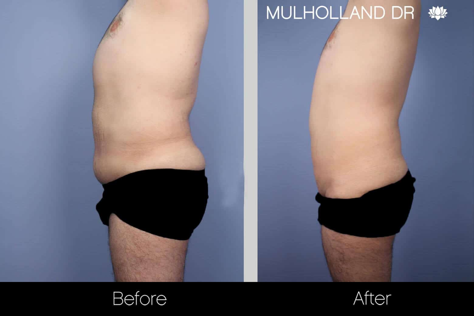 Male Tummy Tuck - Before and After Gallery - Patient Photo 5