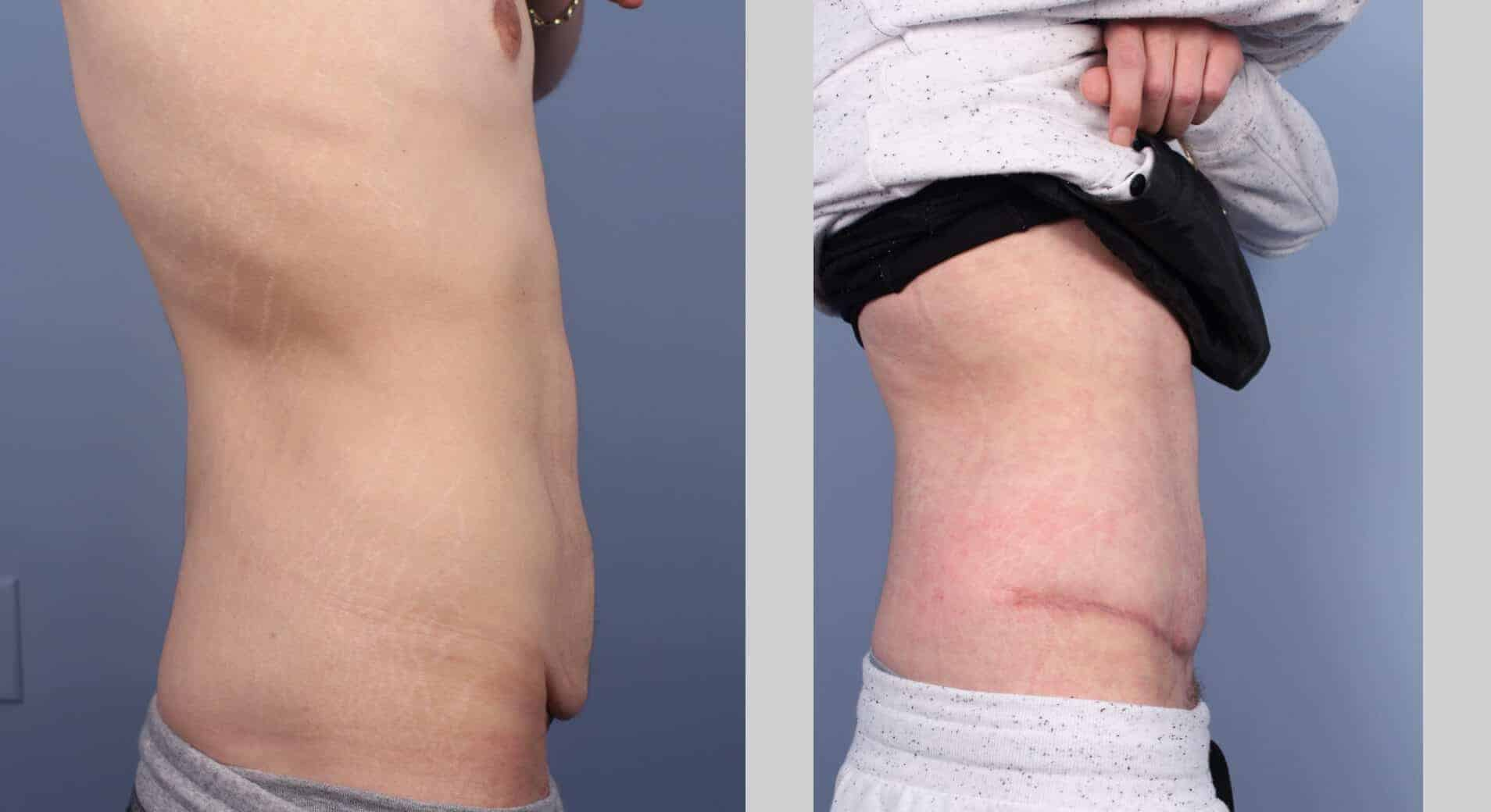 Male Tummy Tuck - Before and After Gallery - Patient Photo 53