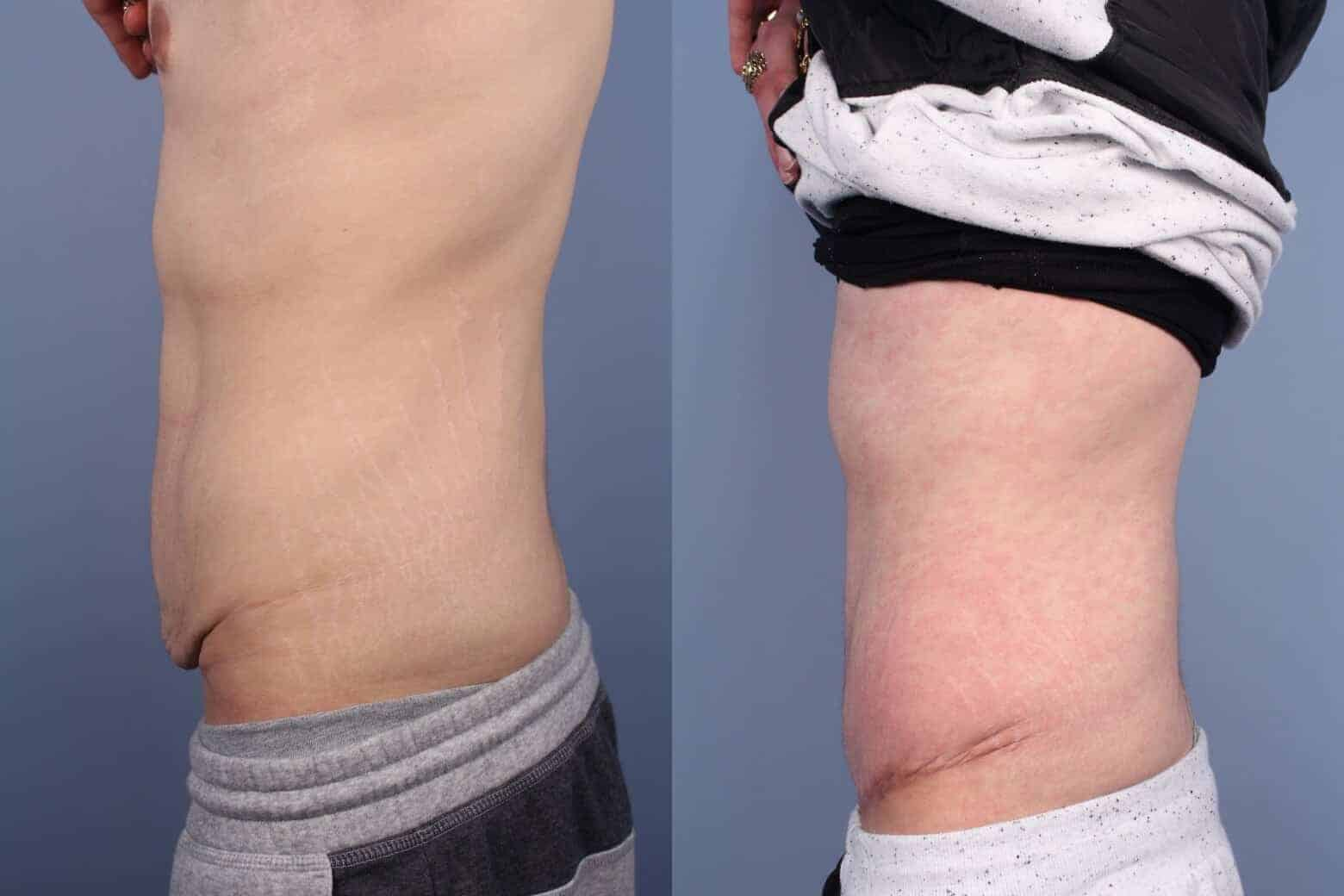 Male Tummy Tuck - Before and After Gallery - Patient Photo 54