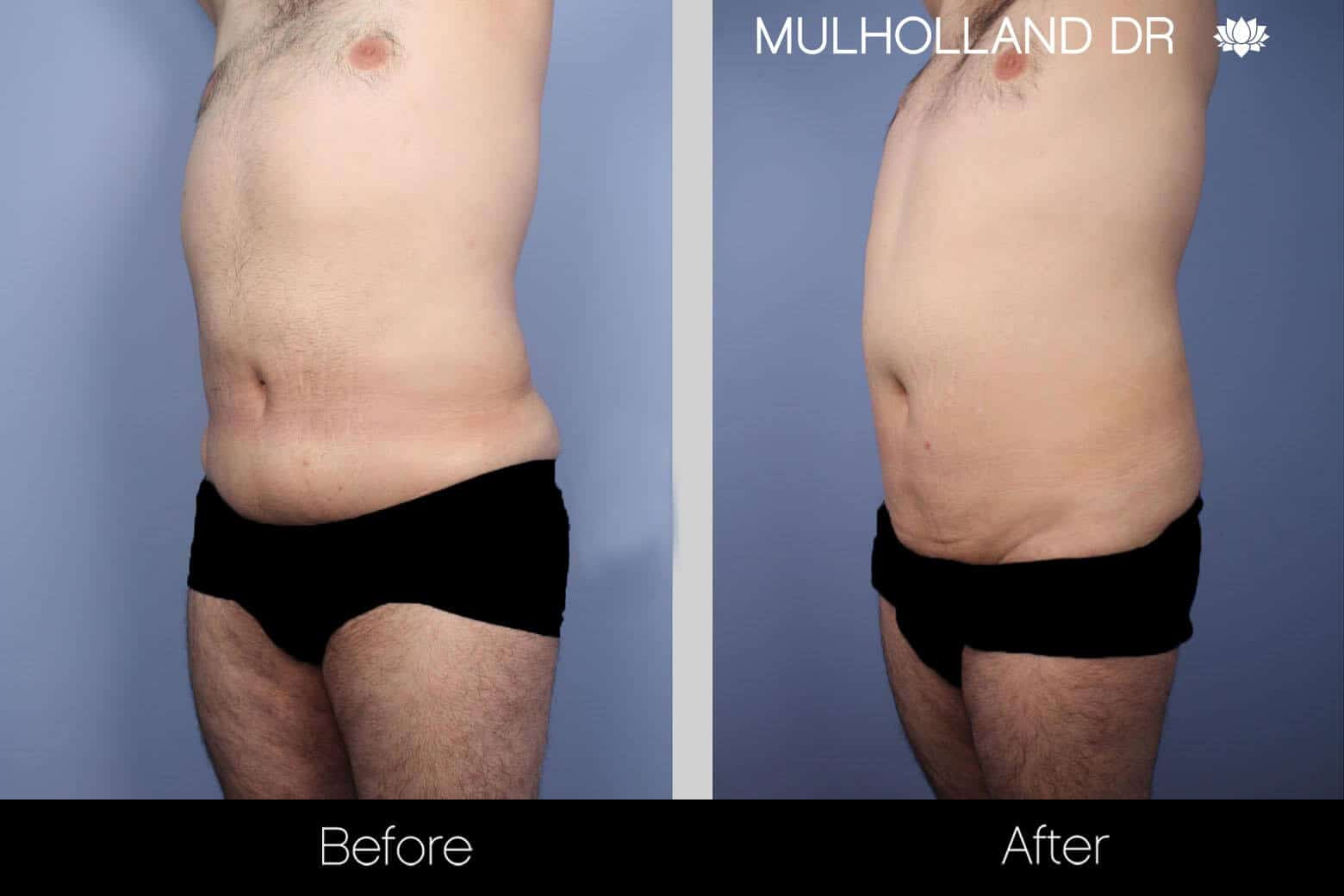Male Tummy Tuck - Before and After Gallery - Patient Photo 6