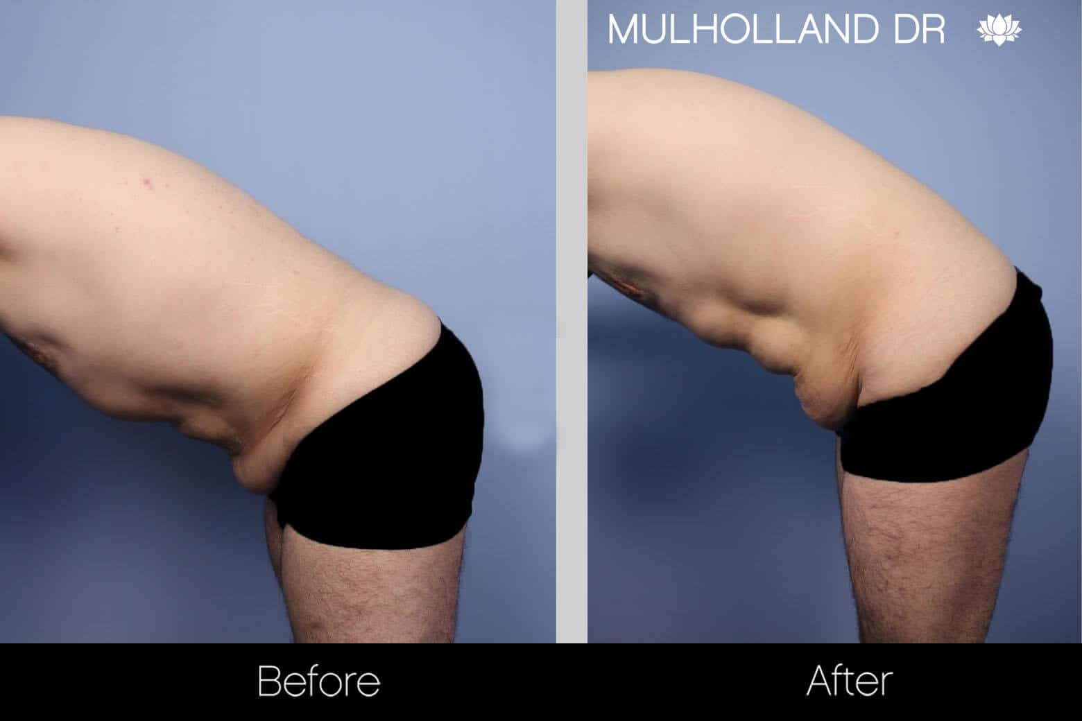 Male Tummy Tuck - Before and After Gallery - Patient Photo 7