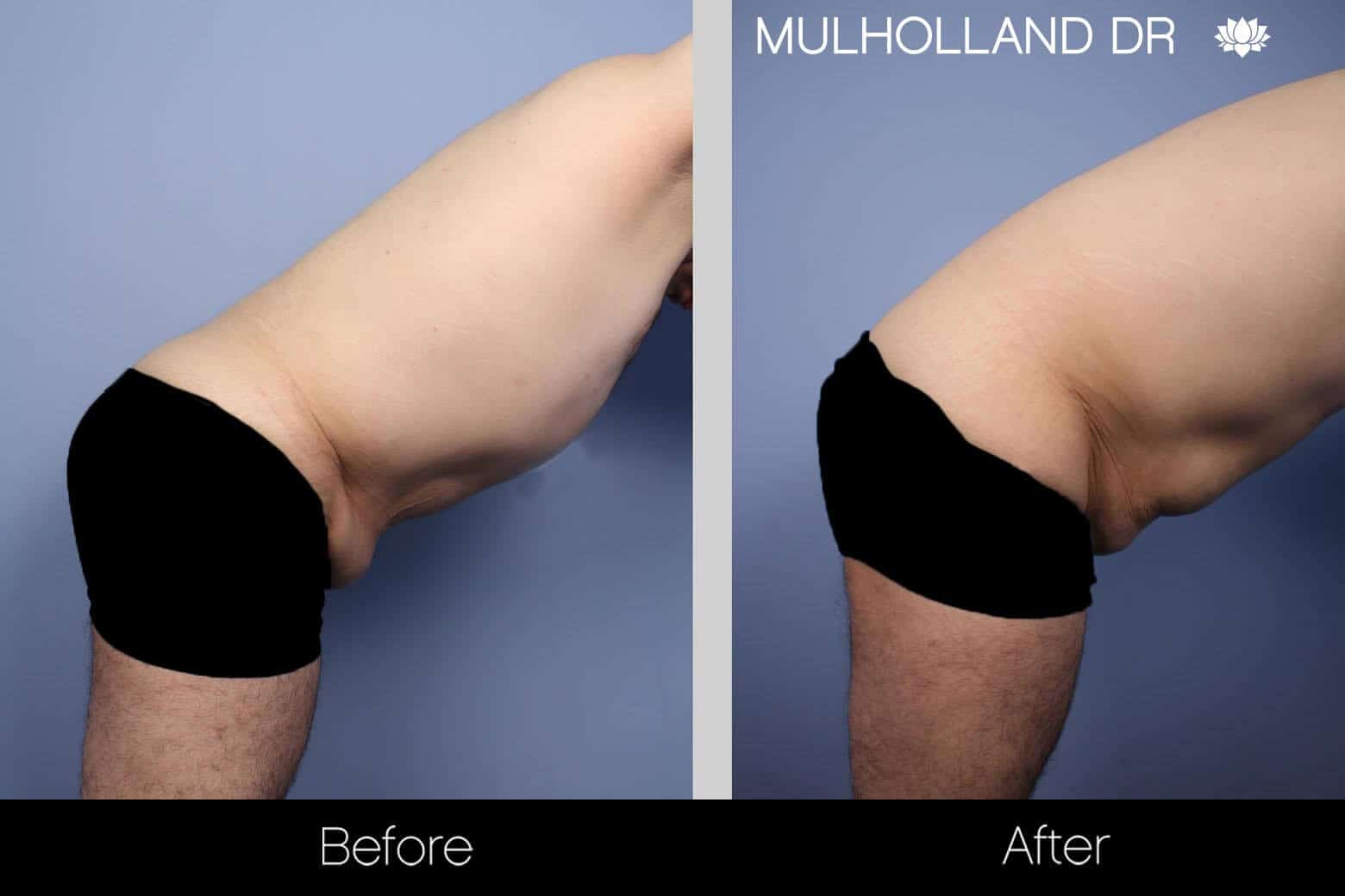 Male Tummy Tuck - Before and After Gallery - Patient Photo 8