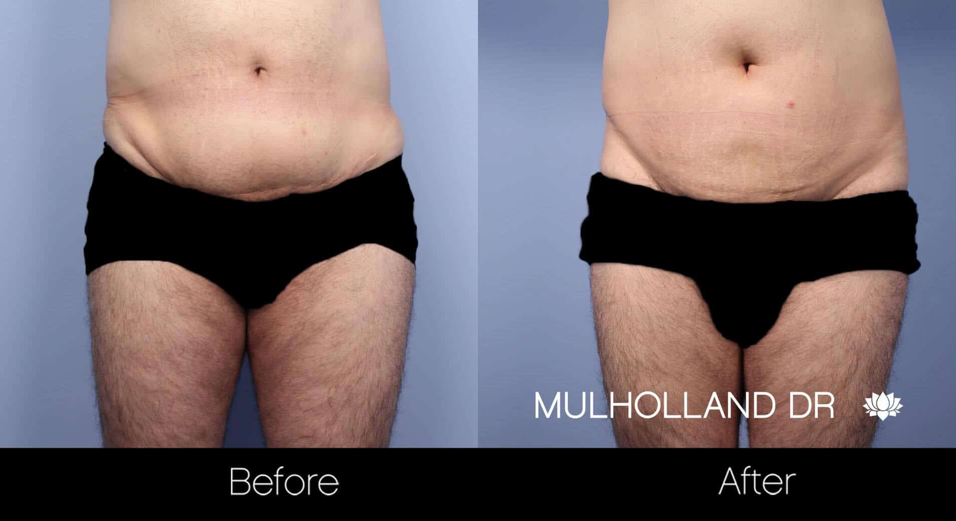 Male Tummy Tuck - Before and After Gallery - Patient Photo 9
